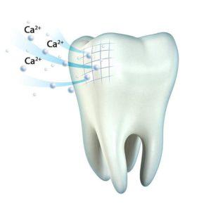 Реминерализация/укрепление зубов